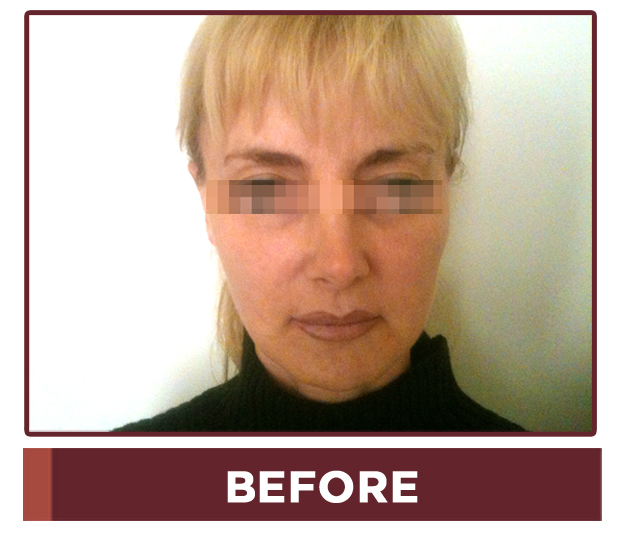 Cosmetrix Plastic Surgery